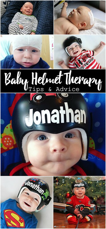 Baby Helmet Therapy: Tips & Advice. If your craniosynostosis or plagiocephaly/brachycephaly journey has lead you to helmet therapy, fear not! It's not as bad as you think it's going to be, and here's why!