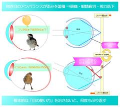 簡単図解シリーズ04 目の使い方の悪さ・利き目のアンバランスが歪みを蓄積⇒頭痛・眼精疲労・視力低下 真・視力回復法〜視力回復コア・ポータル