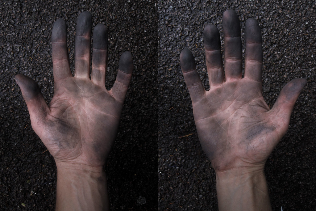 Puncture repair hands - palms