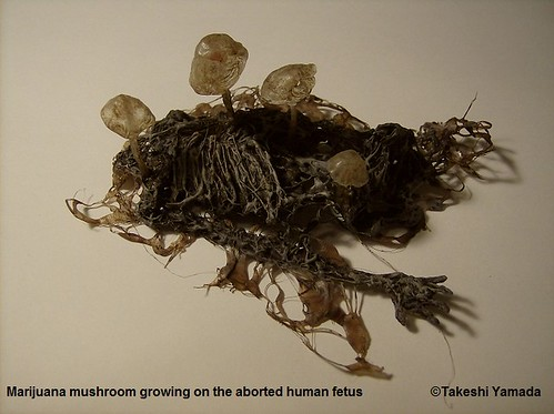 Marijuana Mushrooms (Abortion Mushrooms) growing on the aborted human fetus, 2011 | by Dr. Takeshi Yamada