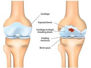 Gejala Penyakit Pengapuran Tulang Sendi