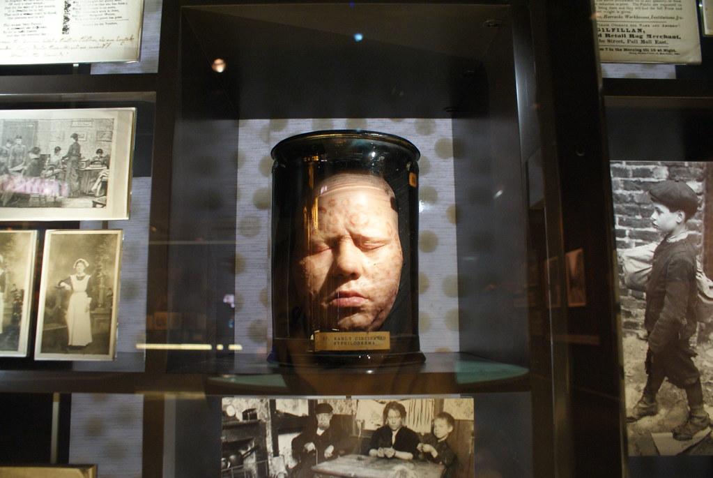 Visage dans du formol ou tête de cire (wax head) ? L'illustration des effets de la syphilis au musée de Londres.