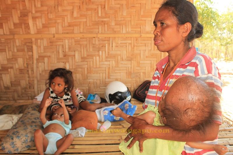 Ibu Orpha Dunga Hau Sedang Menggendong Santi Yang Kepalanya Membesar