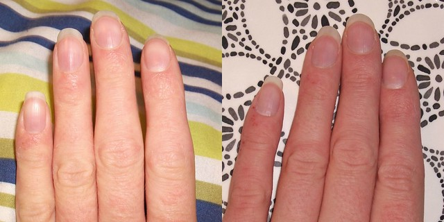 O'Keeffe's Working Hands Before & After