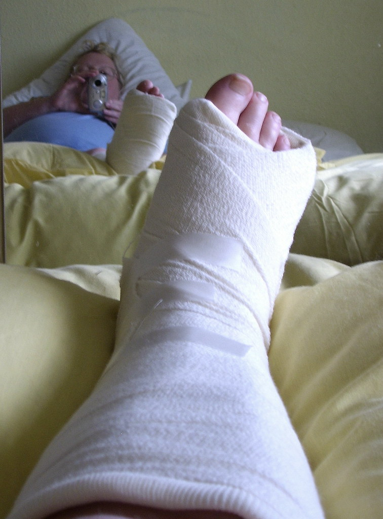 Broken Foot Bandage my Broken Foot Missed my