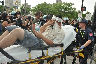 Chicago fire department carts injured protestor to ambulane | by andrew duneman