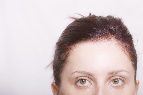 女性 薄毛 髪型