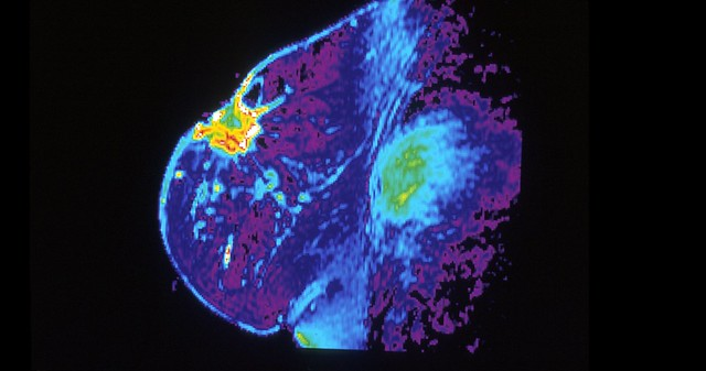Mri_of_breast2