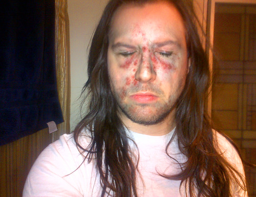 Andrew W.K.'s Party Face Rash | by Andrew WK
