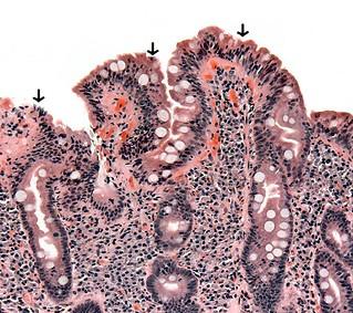 Le diagnostic de la maladie coeliaque par biopsie