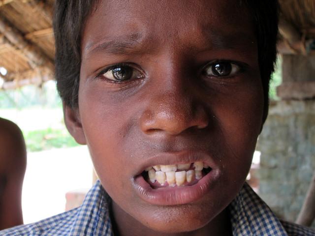 डेंटल फ्लोरोसिस का असर बच्चों में साफ देखा जा सकता है
