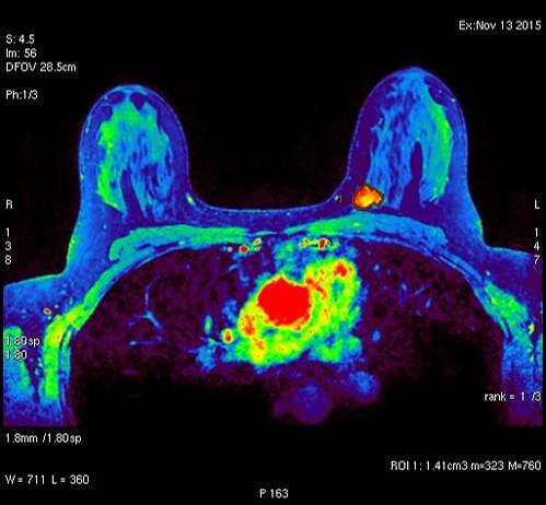 3d Radiology Center - Breast
